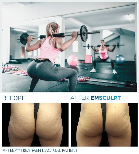 squat-emsculpt avant apres